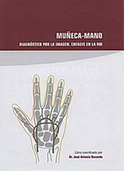 muneca_mano_2007