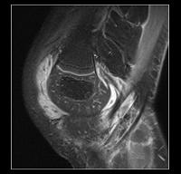 rodilla-pediatrica-ajustada